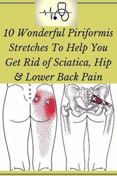 10 Wonderful Piriformis Stretches To Exercise You Get Rid of Sciatica, Hip & Lower Back Pain! Sciatica Exercises, Back Pain Exercises, Lower Back Pain Stretches, Arthritis Exercises, Knee Arthritis, Body Stretches, Flexibility Exercises, Stretching Exercises, Rheumatoid Arthritis