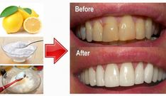 whiten-teeth-with-baking-soda-and-lemon
