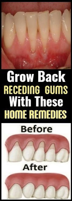 If you are experiencing receding gums then you have found a great article to read. In this article you will find 9 of the best home natural remedies to help grow back your receding gums. Your gums are not something you should ignore, especially if you are