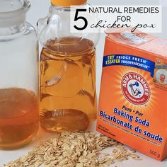 5 Natural Remedies for Chicken Pox - help your child with the itchiness of chicken pox with these simple at home natural remedies for relief