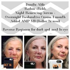 In October 2014, R+F consultant, Danita Able, had surgery to remove skin cancer from her face. Once her stitches were removed the scar became raised and her doctor had suggested discussing surgical solutions. Instead, she began using Rodan + Fields Night Renewing Serum and Overnight Restorative Cream. A month later she began using the Reverse regimen and AMP MD Roller. Check out the wonderful improvement on her face! http://iarman.myrandf.com !