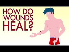Animated TED-Ed Lessons Explain How Wounds Heal and How Scars Form
