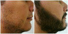 Before and after of a beard hair transplant. CosMed Clinic Mexico in #Tijuana offers hair transplants and uses high quality technology of Belgian origin. Learn more about them at: cosmedclinic.com #BajaCalifornia #Transplant #Mexico #CosmedClinic #Health #Care #BajaHealth #BajaHealthTourism #HealthTourism #Dr #MedicalCare