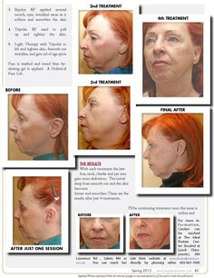 """Read my article in our We Tried It section entitled """"Relax Your Way to a New, Younger Face"""" relating my personal experience with the new noninvasive anti-aging treatment called SignetTone™. Read FREE now at www.applaudwomen.com/ApplaudWomenSpring2012mag.html#/45/"""