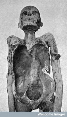 Nespaheran, priest of Amun, who was between 25 and 30 years old when he died in the 21st Dynasty with spinal tuberculosis.