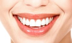 Groupon - $ 39 for a Dental Package with Custom Bleaching Trays, Exam, and X-rays at Mission Boulevard Dental Group ($505 Value) in Pacific Beach. Groupon deal price: $39
