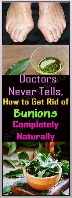 Bunions are hard knocks that shape on the joint at the base of your huge toe. A bunion for the most part structures when your enormous toe pushes against your next toe, driving the joint of your hu…
