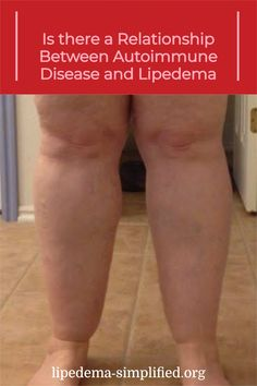 Dr. Mason is a medical doctor who also has a degree in Physiotherapy. He has an in-depth understanding of the latest science surrounding weight loss and nutrition and specializes in using a low carbohydrate approach with his patients to achieve excellent results. In this excerpt, he talks about the possible relationship between autoimmune disease and lipedema. Medical Doctor, Autoimmune Disease, Health Fitness, Nutrition, Weight Loss, Relationship, Science, Life, Medical