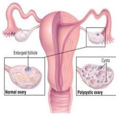14 Herbal Remedies For PCOS