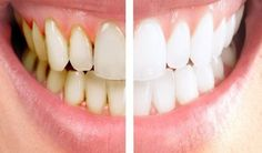 4 MOM Recipes |   He Mixed 2 Ingredients And Put Them On His Teeth, What It Does? I'm Trying This