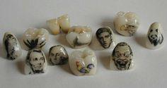 Los tatuajes dentales son diseños personalizados que se añaden a coronas…