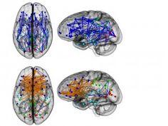 Breinonderzoek onthult opmerkelijke verschillen tussen mannen en vrouwen - New Scientist