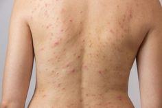 4 consejos para embellecer la espalda y evitar el acné