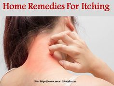 Best Ointment For Eczema. Itchy skin and eczema medication. On the list of various chronic skin disorders, eczema is among the most frequent. Rashes Remedies, Snoring Remedies, Heat Rash, How To Treat Eczema, Contact Dermatitis, Sage Essential Oil, Skin Rash, Soap Recipes, Allergies