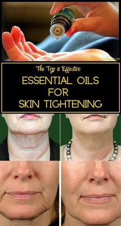 Essential Oils for Skin Tightening - Get rid of Saggy skin Here& the list of some amazing vital essential oils that prevent skin aging and promote skin tightening. Therapeutic Essential Oils, Essential Oils For Skin, Homemade Essential Oils, Beauty Care, Beauty Skin, Beauty Hacks, Diy Beauty, Face Beauty, Homemade Beauty