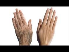 Anti-Aging Skin Care Tips For Younger Looking Hands - Beautiful Skin By Carmen Anti Aging Tips, Anti Aging Skin Care, Natural Skin Care, Natural Beauty, Creme Anti Age, Anti Aging Cream, Age Spots On Face, Age Spot Removal, Hand Scrub