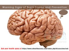Warning Signs of Brain Stroke and Prevention. #ehealthaccess  For more details visit.  https://plus.google.com/106336664270894465334/posts/Eq8rxMUfP6t  https://ehealthaccess.com