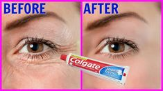 Step 1 – Pack For this you will need A plain toothpaste, do not use any gel based toothpaste (Use plain colgate) Tomato juice Vitamin E capsule Aloe vera gel First in a clean bowl take half spoon … Home Remedy To Erase All Aging Signs From Your Face M Beauty Tips For Face, Beauty Skin, Beauty Hacks, Health And Beauty, Beauty Care, Face Tips, Sara Beauty, Stronger Teeth, Younger Looking Skin