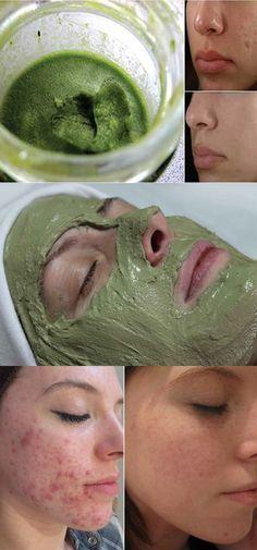 Esta Máscara irá Remover Acne e Cicatrizes do seu Rosto em Apenas 3 dias! #mascara #acne #rosto #beleza