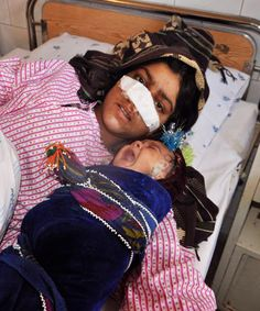 Her Husband Cut Off Her Nose When She Protested His Decision To Marry A Child. More details have emerged about the young woman who had her nose cut off by her husband in Afghanistan, The New York Times and the Afghanistan Independent Human Rights Commission report. Reza Gul, 20, was attacked by her husband on Sunday after arguing with him over his decision to take a 6- or 7-year-old niece as his fiancee. Khan and his family had beaten and abused Gul throughout her six-year marriage.