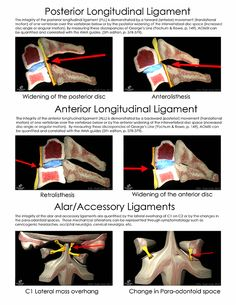 Ligament Laxity and Impairment ratings