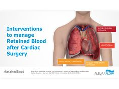 Interventions to manage Retained Blood after Cardiac Surgery
