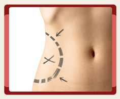 Study the Difference between #Liposuction vs. #Bariatric_Surgery! Which Procedure is the right one for You?