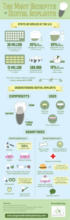 #dentalimplantplantationfl