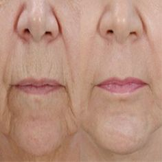 Daily Lifestyle Tips To Reduce Wrinkles | Medi Tricks