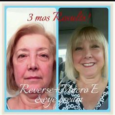 Is it just me?  Or do you see the change I see? ...It's so much MORE than just her skin!! ..SO MUCH MORE that just skincare! #lovemyvirtualfranchise
