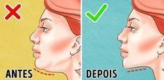 A gordura na papadapode afetar pessoas de todas as idades. Você obtém um queixo duplo quando tecido adiposo se acumula em sua área submental, ou sob a área do queixo, e dá ao seu rosto