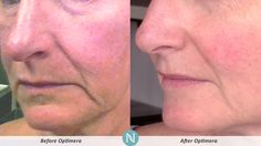 Jeanette shared her #RealResults from Optimera!