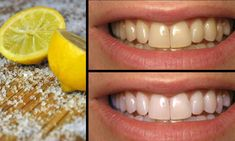 Reverse Cavities Naturally and Heal Tooth Decay with THIS Powerful Tooth Mask! - Healthy Tips Collections
