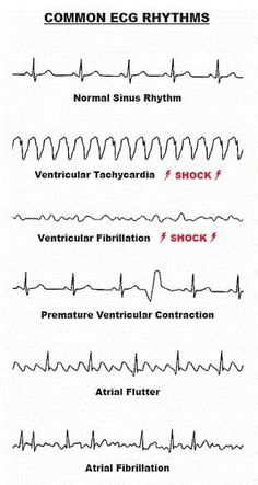 ECG article on rhythms and what's normal | livestock