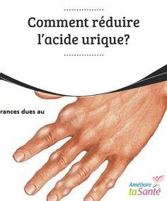 Comment #réduire l'acide urique?   Quand les #niveaux #d'acide urique dans le sang sont élevés, cela peut causer différentes #maladies, comme la goutte, des #calculs rénaux ou des insuffisances rénales.