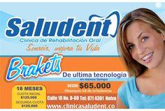 Brakets de ultima Tecnologia www.clinicasaludent.co