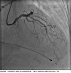 From: The Anchor-Balloon Technique for Difficult Chronic Total Occlusions In: Cath Lab Digest 2014;22(9)