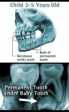 """Parents sometimes feel that because their children have """"baby"""" teeth that will eventually fall out, there is no need to fix a problem that may arise with those teeth. The truth is that baby teeth or deciduous/primary teeth are very important.   Dentaltown - Patient Education Ideas"""
