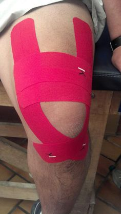 KT Tape for pain at top of knee.