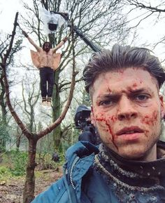 "Alex Høeg Anderson (Ivar the Boneless) with King Aelle ""Blood Eagle"" in the tree - BTS  in Season 4B Episode 18 'Revenge' 