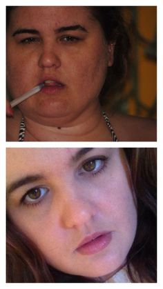 """Before and after hypothyroid treatment. These psi were taken 5 months apart. t has taken years of misdiagnosis and even a fibromyalgia/CFS diagnosis-among others. On the right thyroid medication/combo of them your body does not crave sweets or fatty foods, you are actually put off by them. Hang in there! I am it actually as """"natural"""" as some here.. I am on Tirosint, and Cytomel. 