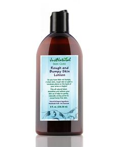 Acne - Rough and Bumpy Smoothing Skin Lotion contains:    Aloe Vera Hydrosol, Murumuru Butter, Apricot Kernel Oil, Karanja Oil, Coconut Fractionated Oil, Grapeseed Oil, Shea Butter, Bayberry Fruit Wax, Vegetable emulsifiers, Meadowfoam Oil, Caprylyl Glycol, Glycerin, Essential Oils of Peppermint, Spearmint, Lavender.