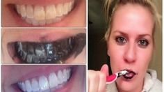 Activated Charcoal Teeth Whitening Wow .. its amazing what you can find while searching out images for cosmetic dentistry and more