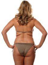 Back Fat Rolls