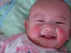 Cure Eczema In Infants