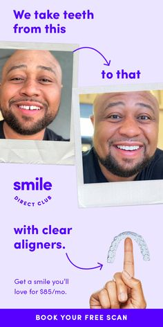 Visit a SmileShop near you and get your free image to start your smile journey. Straighten your smile with clear aligners from SmileDirectClub for 60 less than braces and faster treatment time. Chicken Parmesan Recipes, Chicken Salad Recipes, Pork Recipes, Sauce Recipes, Cauliflower Recipes, Ceviche Recipe, Guacamole Recipe, Halibut Recipes, Frittata Recipes