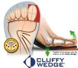Cluffy Wedge for Hallux Limitus