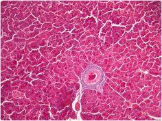 Tecido epitelial glandular.