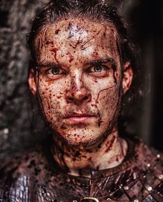 "VIKINGS (@historyvikings) on Instagram: ""Things are getting a ~little~ messy this season."" - Marco Ilsø as Hvitserk in VIKINGS S5"