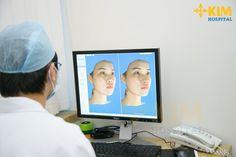 Mô phỏng khuôn mặt trước khi phẫu thuật nâng gò má bằng phần mềm Vceph 3D